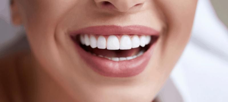 Wybielanie nakładkowe zębów to metoda, która ma wiele zalet.